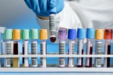 Blood-Test-for-Alzheimers