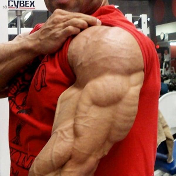 huge-triceps